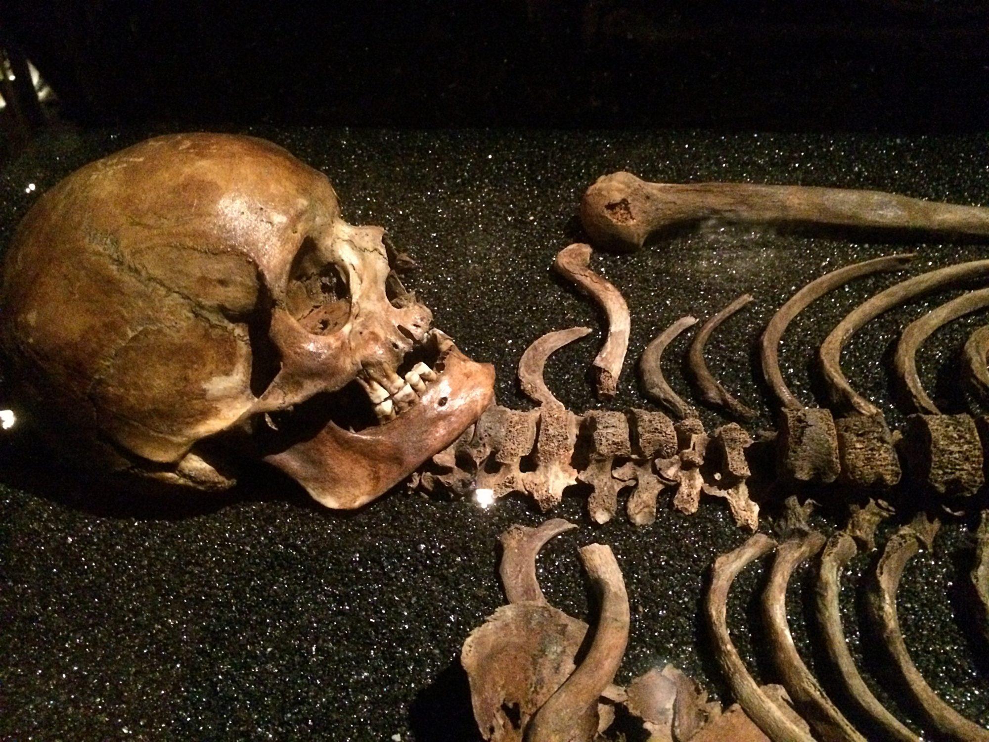 Vasa Museum Skulls and Skeletons